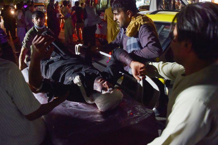 Attentat à Kaboul : au moins 72 personnes sont mortes